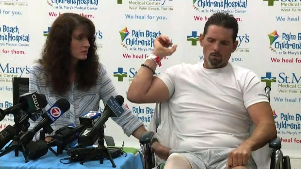 Florida Man Survives a Gator Attack Ordeal